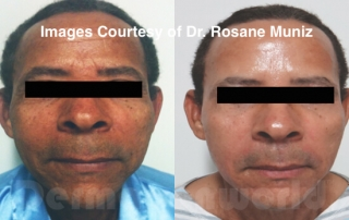 Microneedling skin rejuvenation before and after