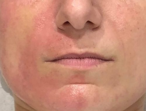 Microneedling – Collagen Induction Treatments