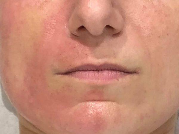 Needling reduce wrinkles